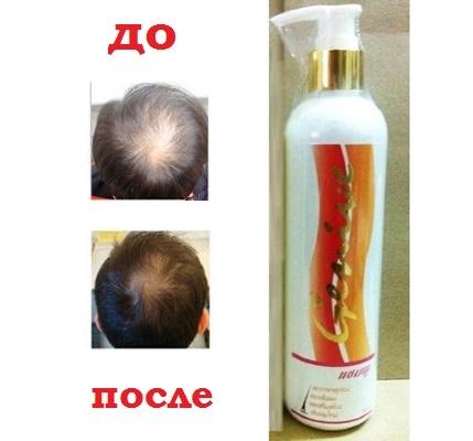 Как избавиться от нежелательных волос с помощью народных средств